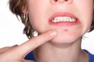 Curare acne